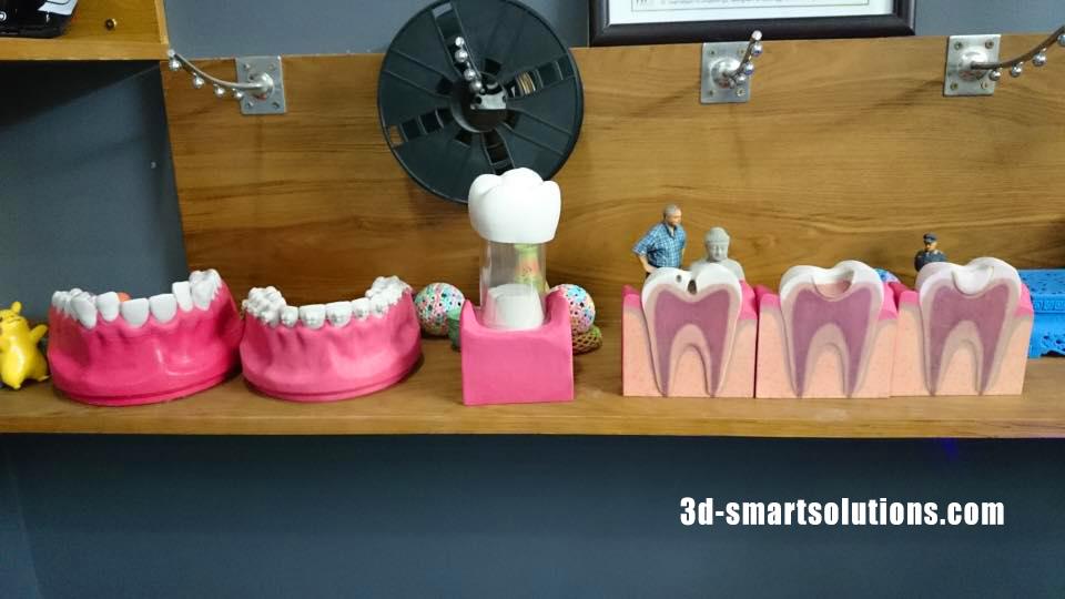 Dự Án in 3D đa sắc màu dụng cụ ngành Nha Khoa