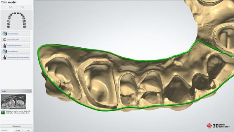 thiết kế 3d răng
